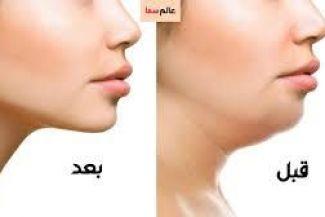 لكل السيدات ذوات الوجه السمين 10 أطعمة فعالة لحرق دهون الوجه