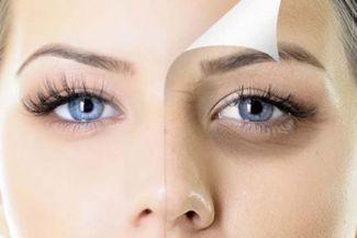 أفضل 10 طرق لإزالة الهالات السوداء تحت العينين