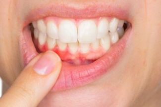 ما هي اعراض التهاب اللثة: