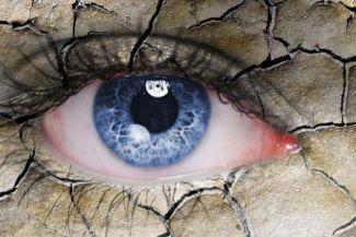 جفاف العين، أسبابه وطرق علاجه
