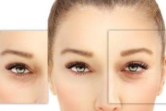 أفضل العلاجات المنزلية لجفاف الجلد حول العين