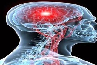 كيف تكتشف الإصابة بالسكتة الدماغية؟ وكيف تتعامل معها؟