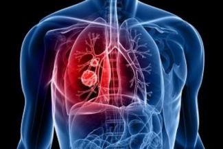 التهاب الشعب الهوائية : الأعراض والأسباب وكيفية العلاج والوقاية