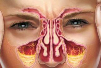 أعراض التهاب الجيوب الانفية وعلاجها